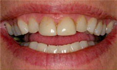 Closeup of yellowed and discolored teeth