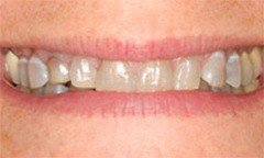 Closeup of gray and discolored teeth