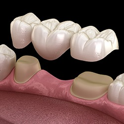 Dentist and patient looking at implant supported fixed bridge model