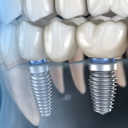 computer animation of dental implant supported replacement teeth