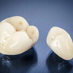 tooth-colored crowns