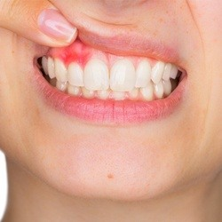 Woman showing red gums before gum disease treatment