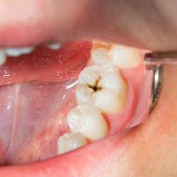 Closeup of tooth cavity before tooth colored fillings