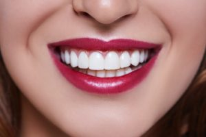 Veneers can brighten your smile.
