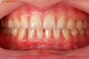 A person with gum disease.